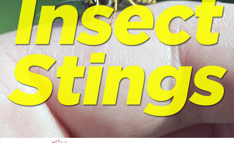 Insect Stings Wasps Bees Hornets Yellow Jackets