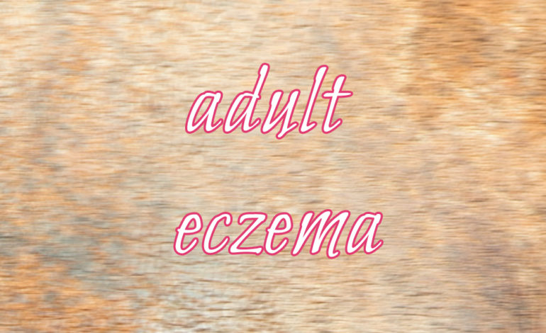 Adult Eczema skin itching itchy dry dryness