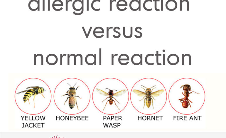 Insect Stings allergic reaction normal reaction